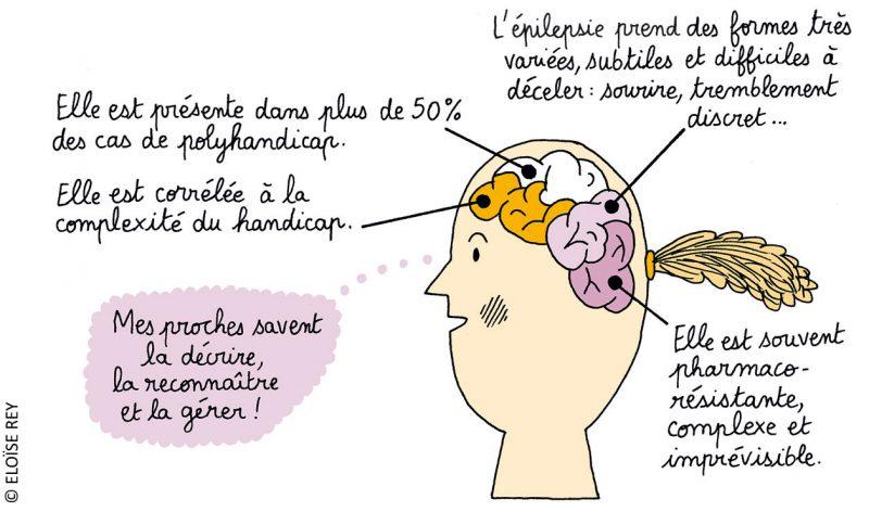 Descriptif de l'épilepsie dans le cadre du polyhandicap